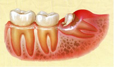 親知らずのことなら、ながお歯科医院にお任せください。