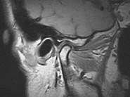 顎関節のMRI写真(図)