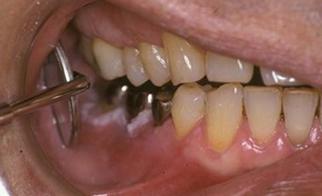 白板症(歯肉)