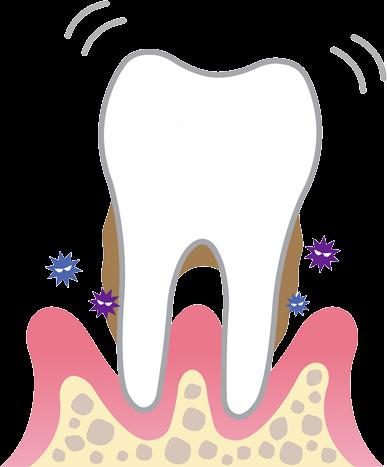 歯周病のコントロール